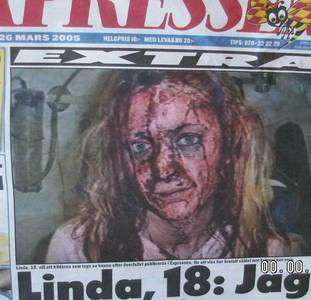 Rape. This is a victim of a raping gang in Sweden.