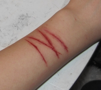 do bạn regret self harm?