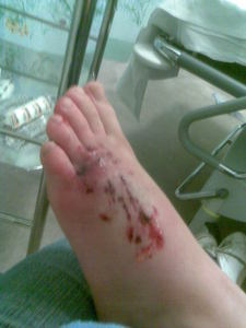 Georgia's Foot Shortly After The Incedent, At The Hospital
