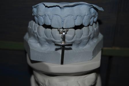 yeah :D haha weirdest randomest freakiest pic ever :D my orthodontist gave me the casts, and I didn't
