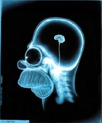 el cerebro de homerito