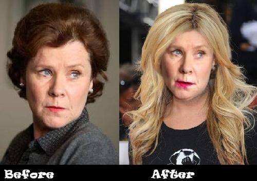 Dolores Umbridge gets a Makeover