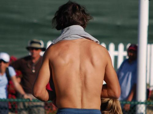 Rafa has a scar on her back!