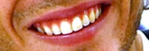 rafa lips and teeth