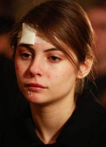 Injured Katniss