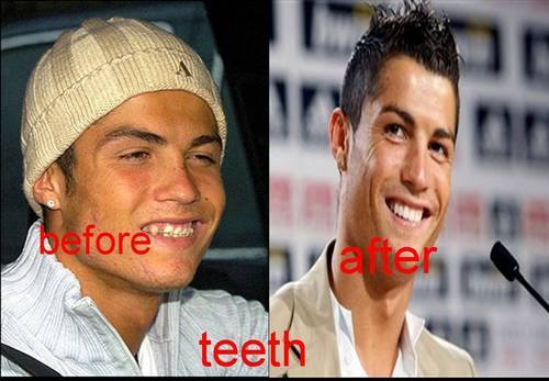 克里斯迪亚诺·罗纳尔多 壁纸 with a portrait called Cristiano Ronaldo teeth before and after
