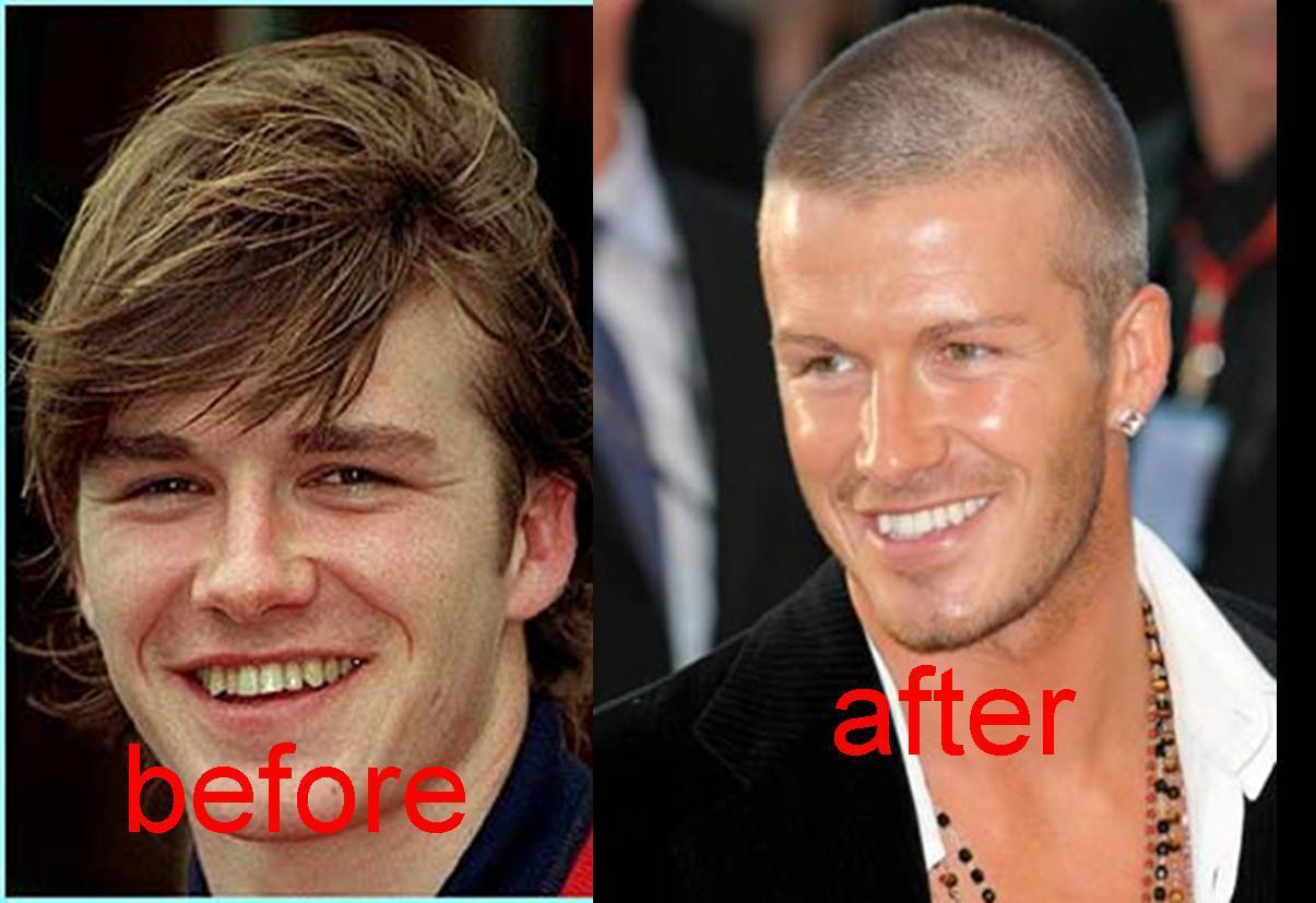 David Beckham teeth before and after