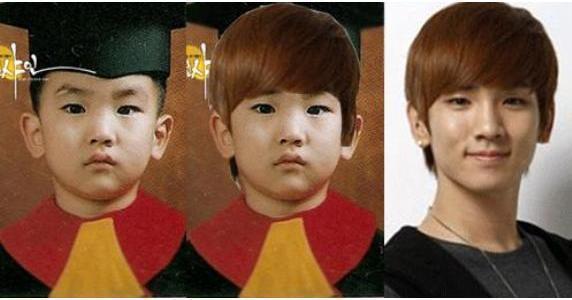 Kim Kibum key plastic surgery