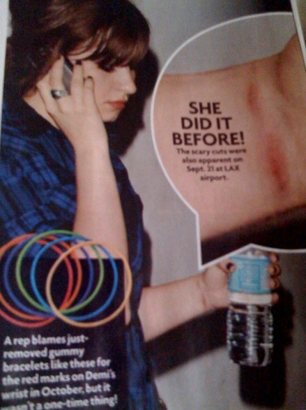 The scars of Demi's cutting