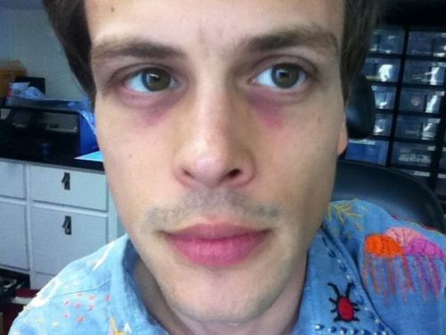 MGG morning eyes