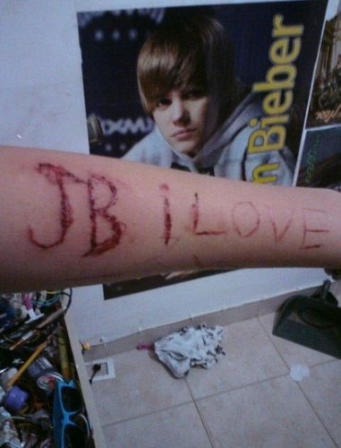 SELF HARM OVER JUSTIN BIEBER :O