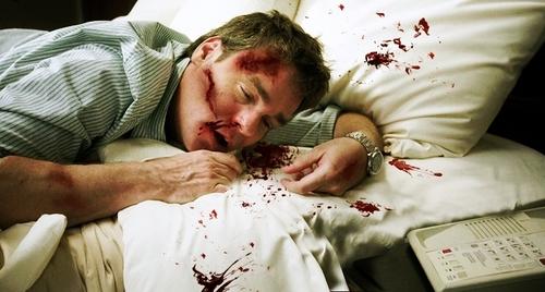 injured!wilson