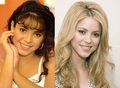 Shakira nose before and after