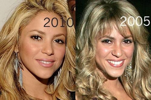 Shakira plastic surgery 2