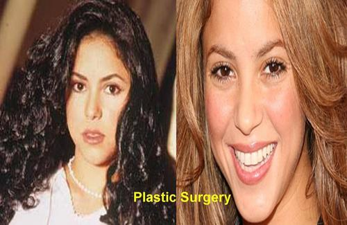Shakira wallpaper containing a portrait titled Shakira plastic surgery