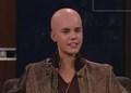 justin bieber's shaved head :0