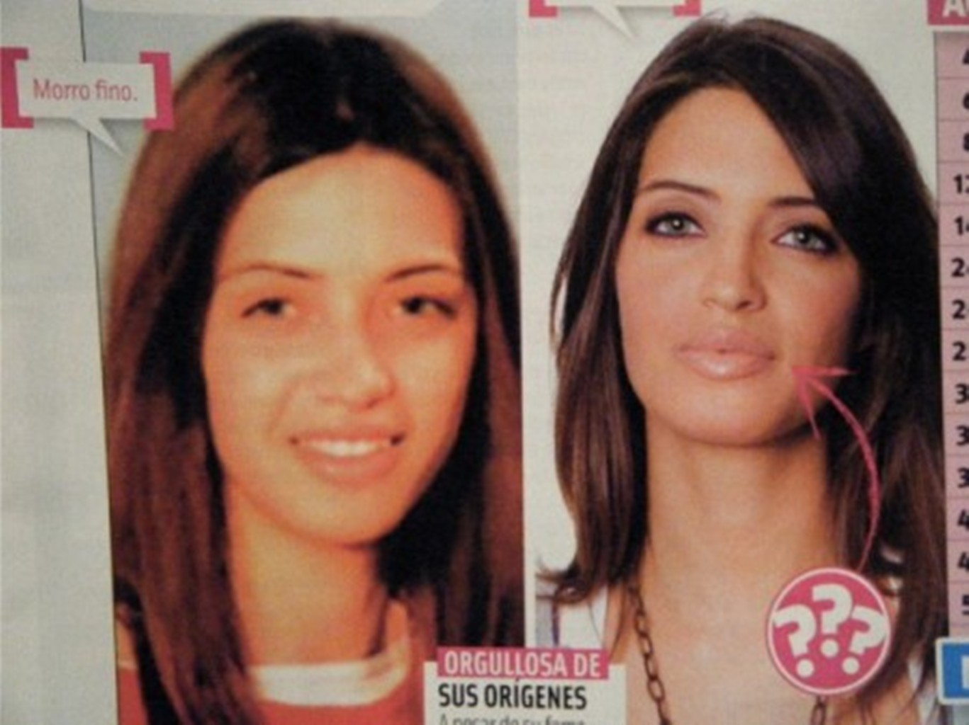 Carbonero lips before and after