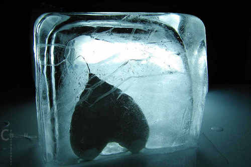 Ice jantung