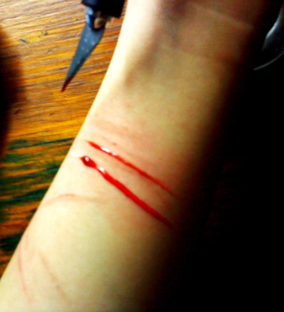 Cut on wrists cut 20106605 933 1023
