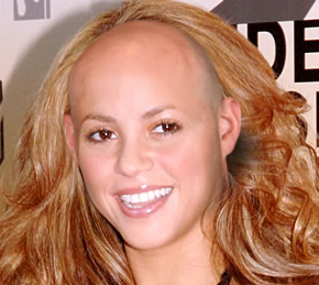 夏奇拉 bald