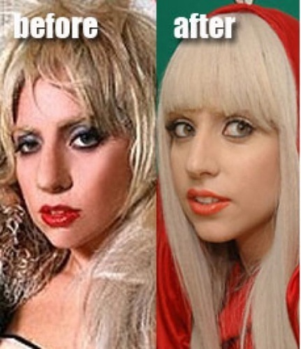 Is this Lady GaGa before and after? Did she get a surgery?