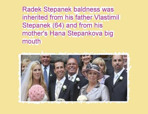Radek Stepanek baldness was inherited from his father and from his mother's big mouth