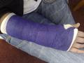 Broken wrist ^^