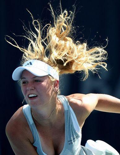 Caroline Wozniacki has Wacky Hair
