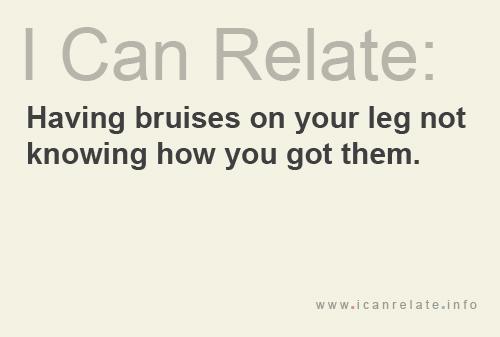 Bruises in Legs