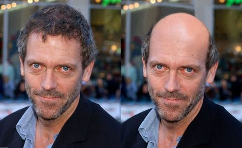 Hugh Laurie-manipulation ( Hugh Laurie hair and slightly balding.)